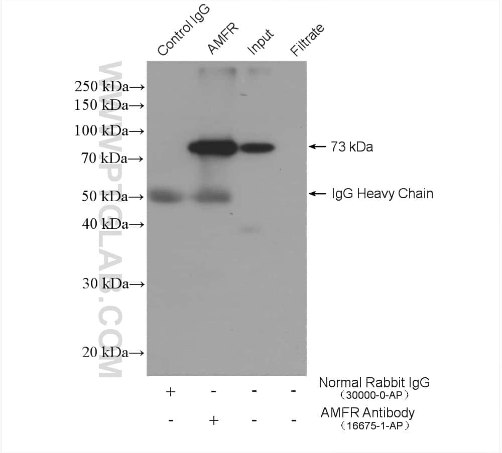 AMFR Antibody in Immunoprecipitation (IP)