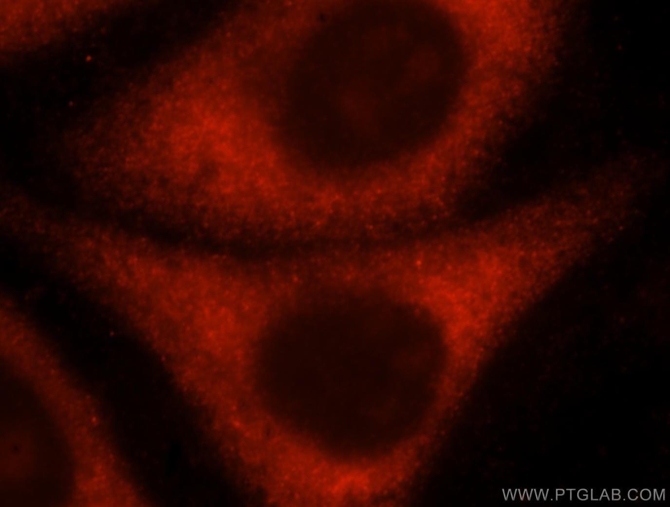 RPL10A Antibody in Immunocytochemistry (ICC/IF)
