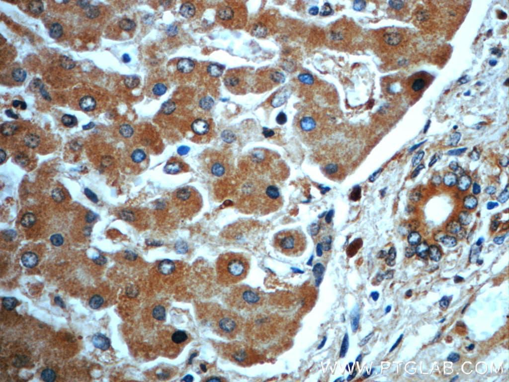 CKAP4 Antibody in Immunohistochemistry (Paraffin) (IHC (P))