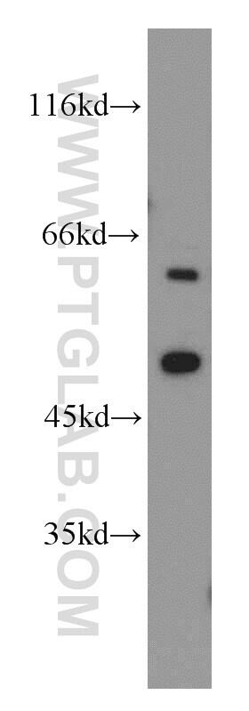 CYP20A1 Antibody in Western Blot (WB)