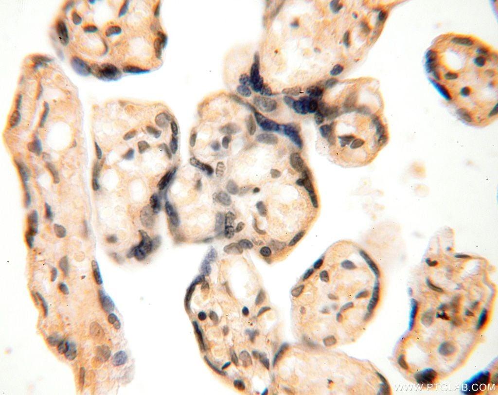 ANTXR2 Antibody in Immunohistochemistry (Paraffin) (IHC (P))