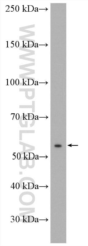 ANTXR2 Antibody in Western Blot (WB)