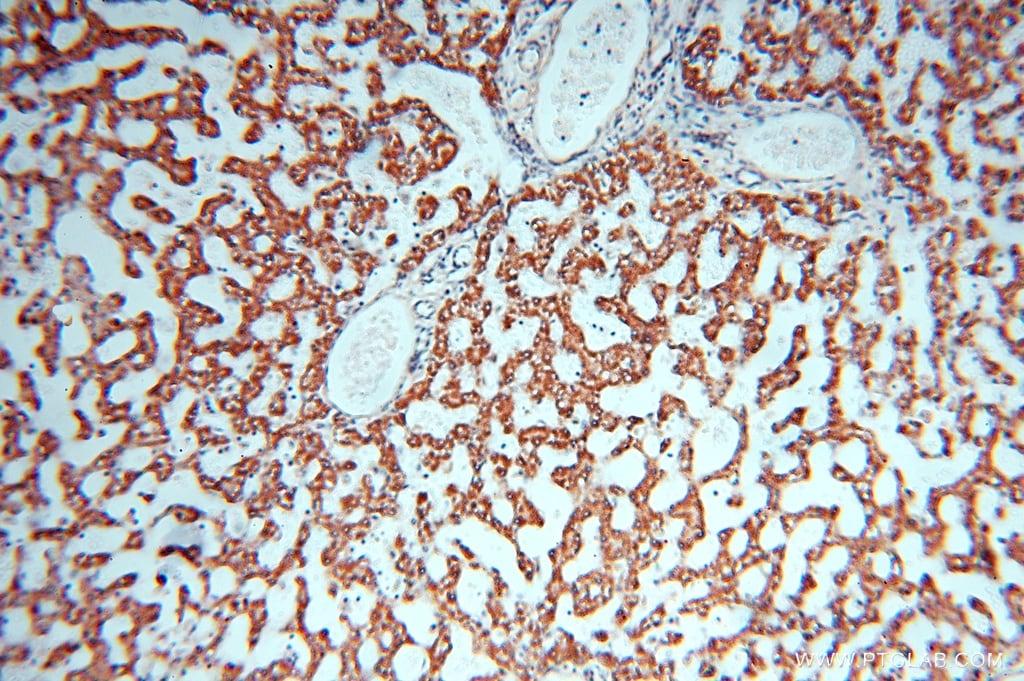 HSD17B8 Antibody in Immunohistochemistry (Paraffin) (IHC (P))