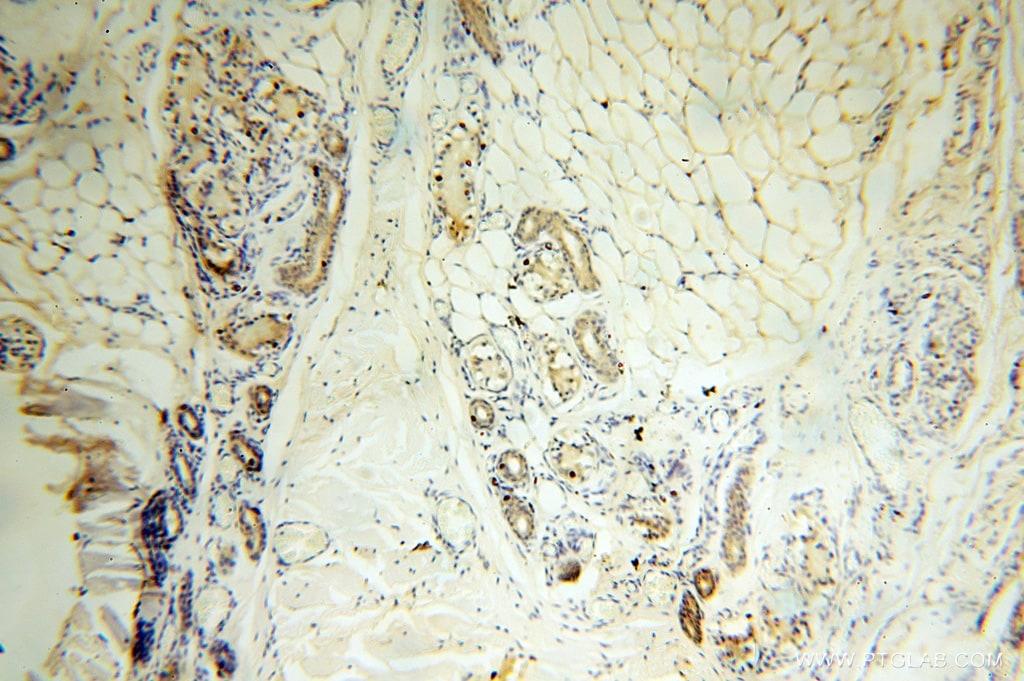 AGPAT6 Antibody in Immunohistochemistry (Paraffin) (IHC (P))