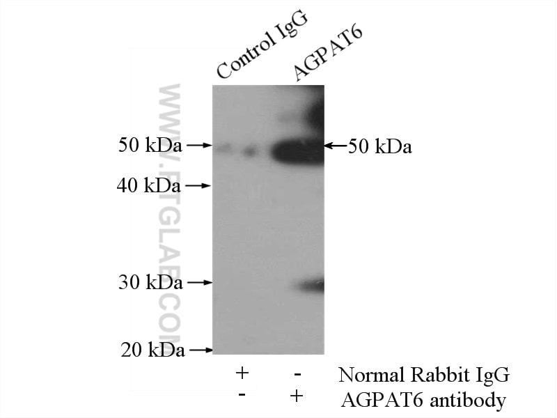 AGPAT6 Antibody in Immunoprecipitation (IP)
