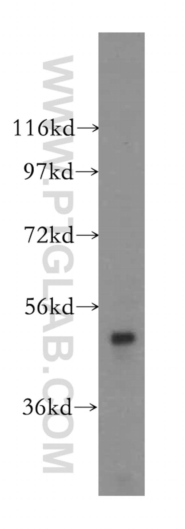 AGPAT6 Antibody in Western Blot (WB)