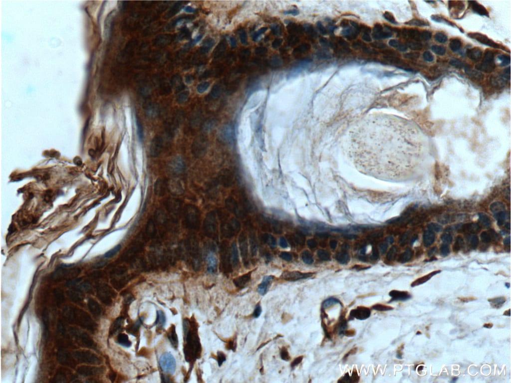 IL1 beta Antibody in Immunohistochemistry (Paraffin) (IHC (P))