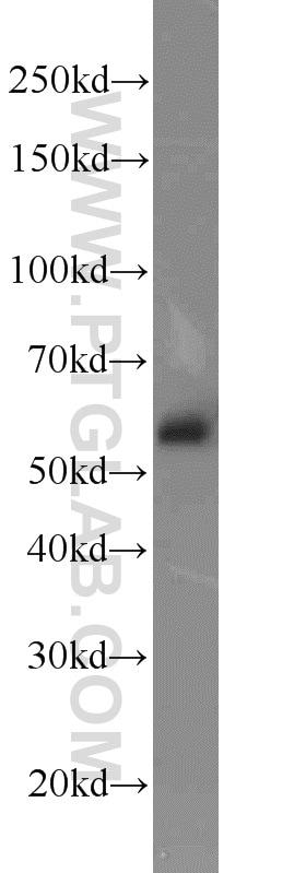 EED Antibody in Western Blot (WB)