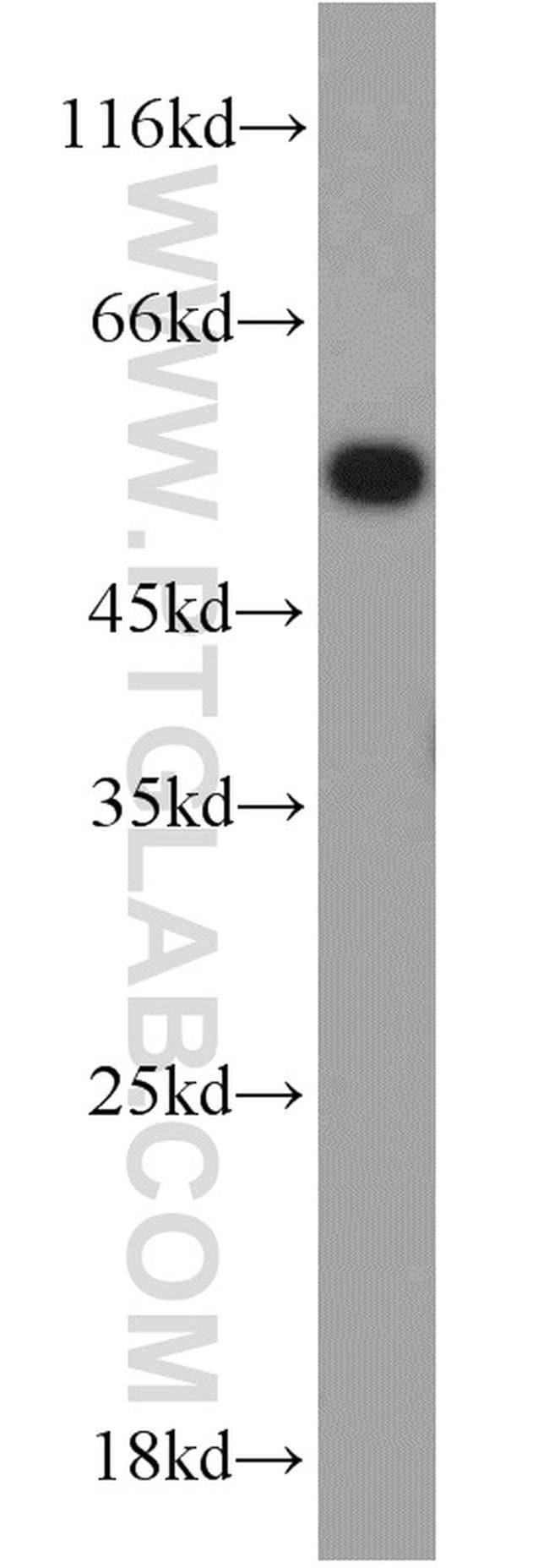 UBR7 Antibody in Western Blot (WB)