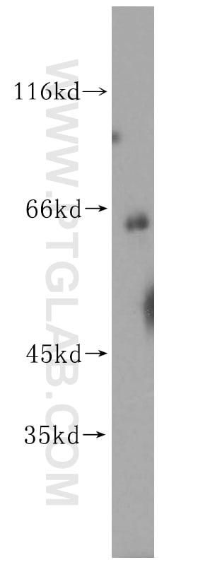 CES1 Antibody in Western Blot (WB)