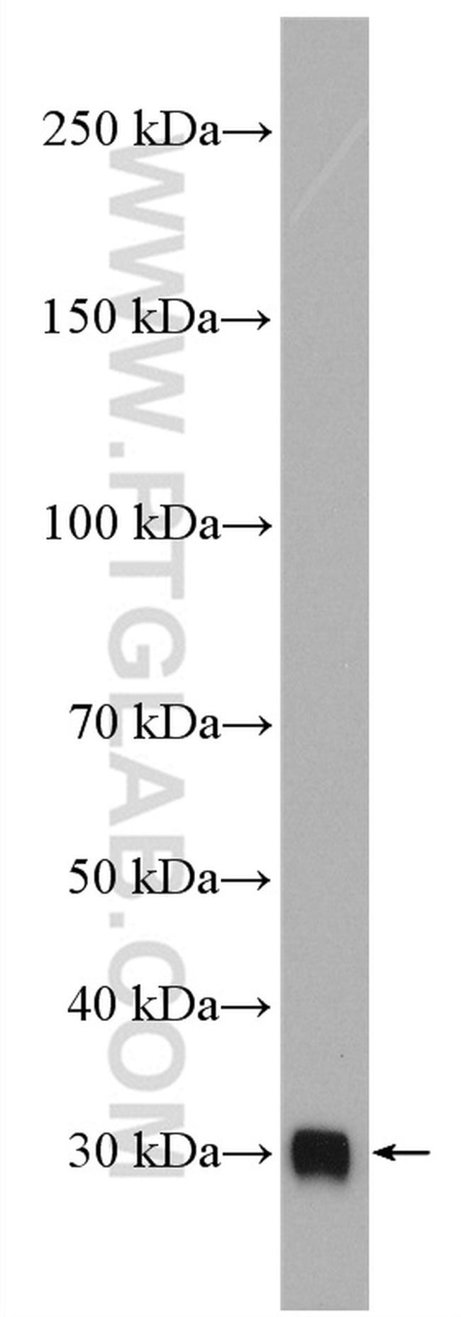 C1qB Antibody in Western Blot (WB)