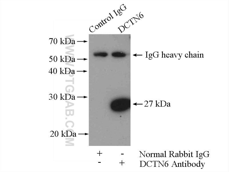 DCTN6 Antibody in Immunoprecipitation (IP)