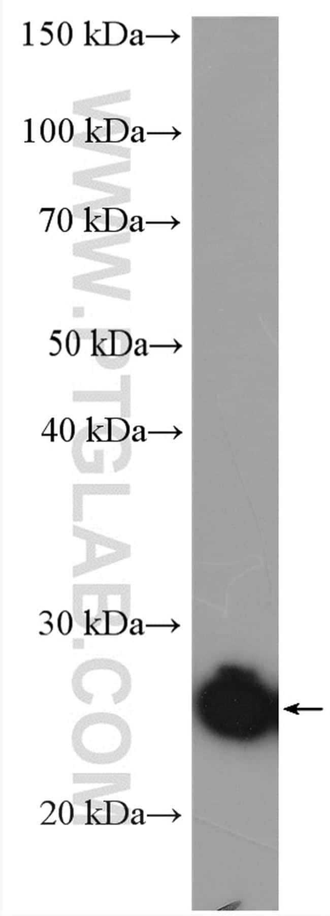 DCTN6 Antibody in Western Blot (WB)