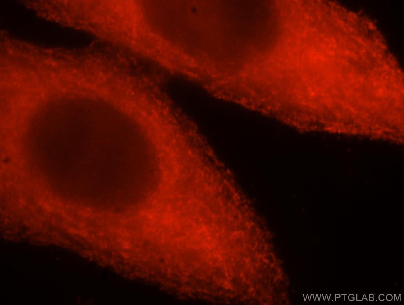 CPLX3 Antibody in Immunofluorescence (IF)
