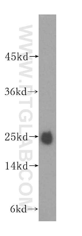 N6AMT2 Antibody in Western Blot (WB)