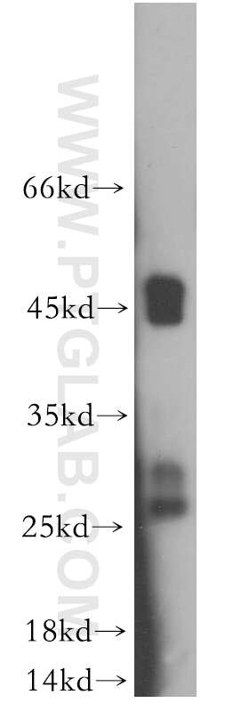 Connexin-26 Antibody in Western Blot (WB)