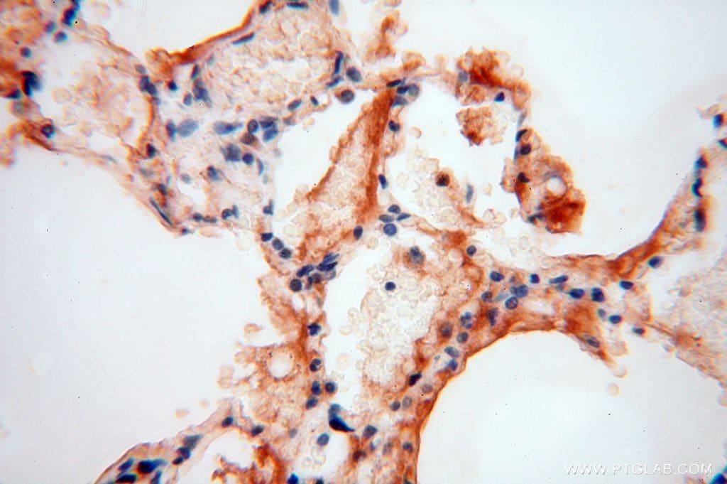 UFSP2 Antibody in Immunohistochemistry (Paraffin) (IHC (P))