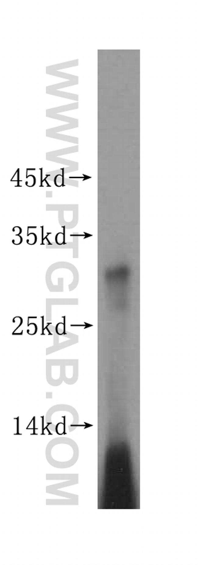 MRPS15 Antibody in Western Blot (WB)