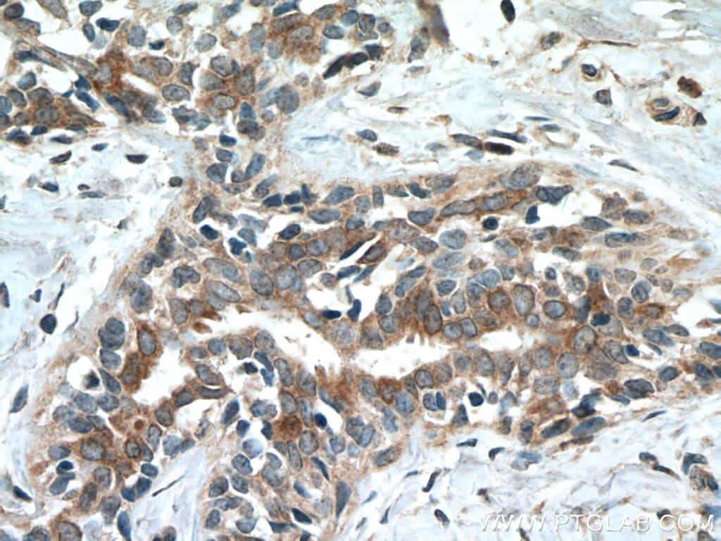 CST6 Antibody in Immunohistochemistry (Paraffin) (IHC (P))