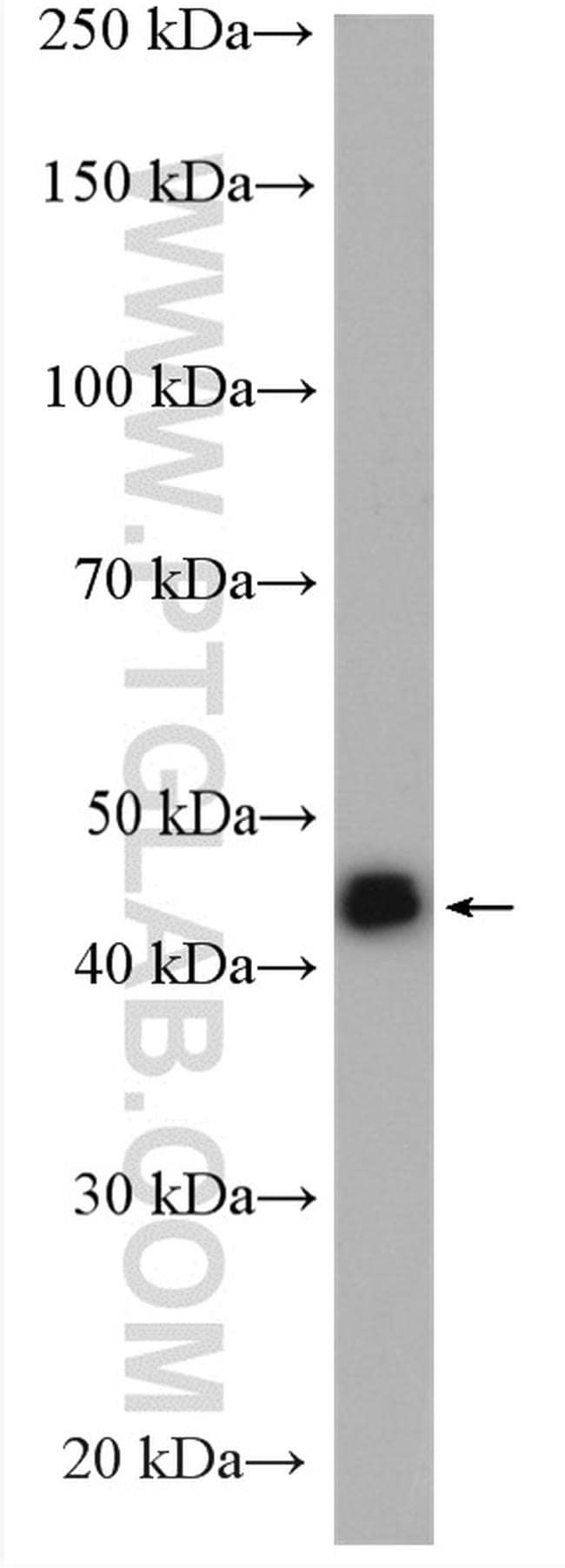 PIP4K2C Antibody in Western Blot (WB)