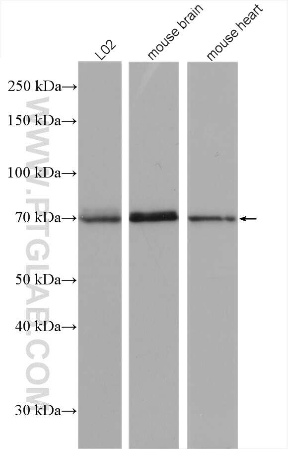SPHK2 Antibody in Western Blot (WB)