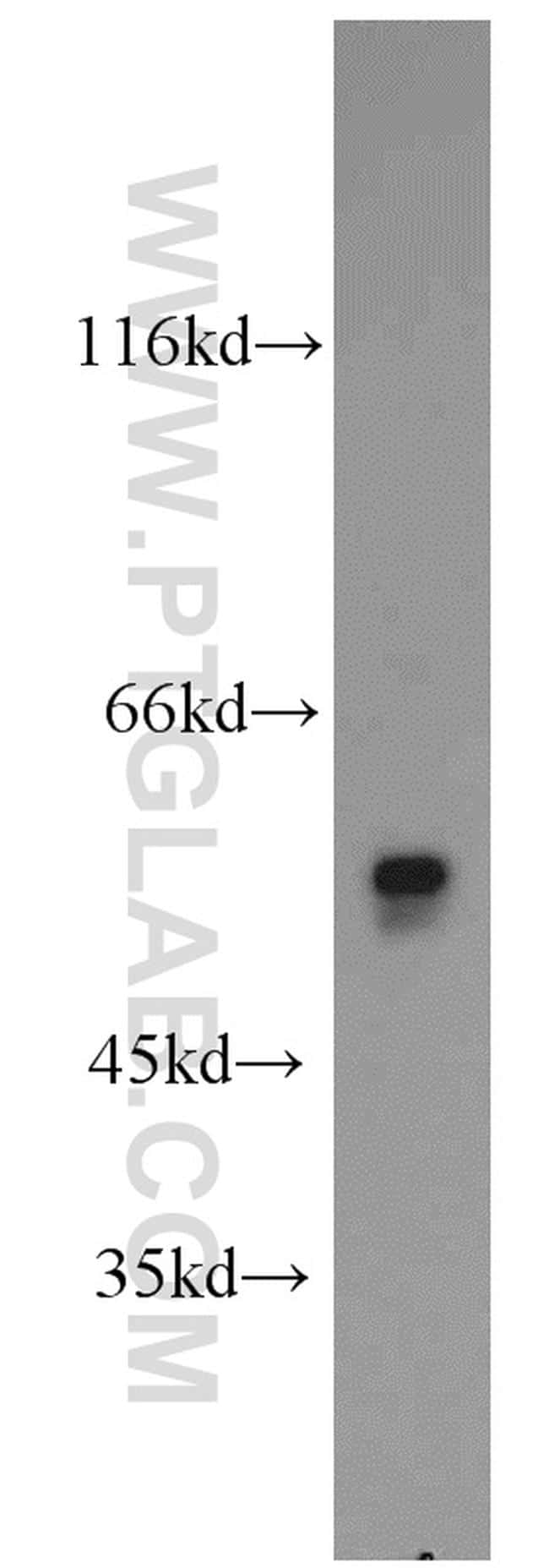 OXCT2 Antibody in Western Blot (WB)