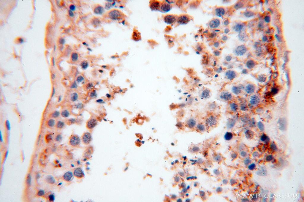 CSNK1A1L Antibody in Immunohistochemistry (Paraffin) (IHC (P))