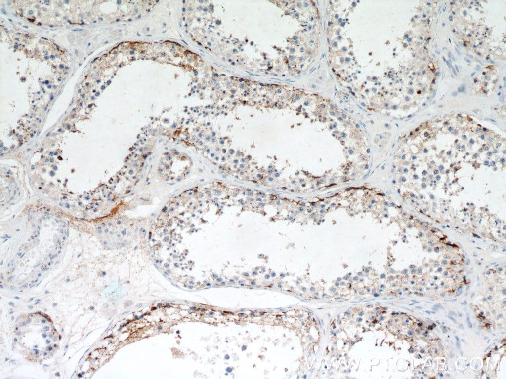 PYCR2 Antibody in Immunohistochemistry (Paraffin) (IHC (P))