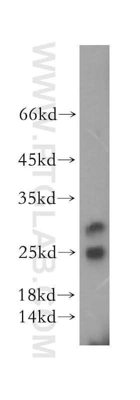 METTL11A Antibody in Western Blot (WB)