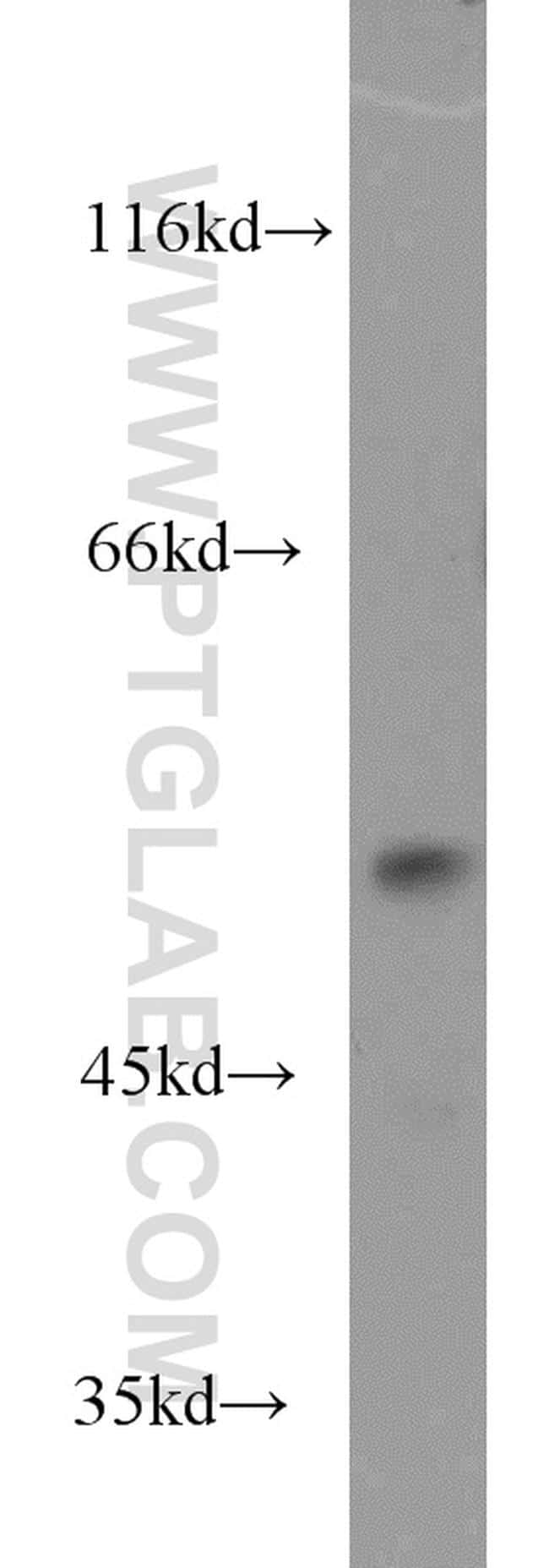 DUS1L Antibody in Western Blot (WB)
