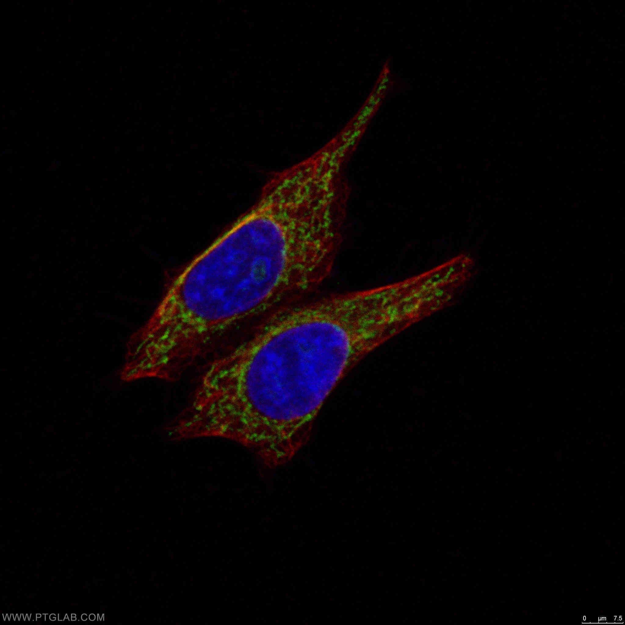 MRPS27 Antibody in Immunocytochemistry (ICC/IF)