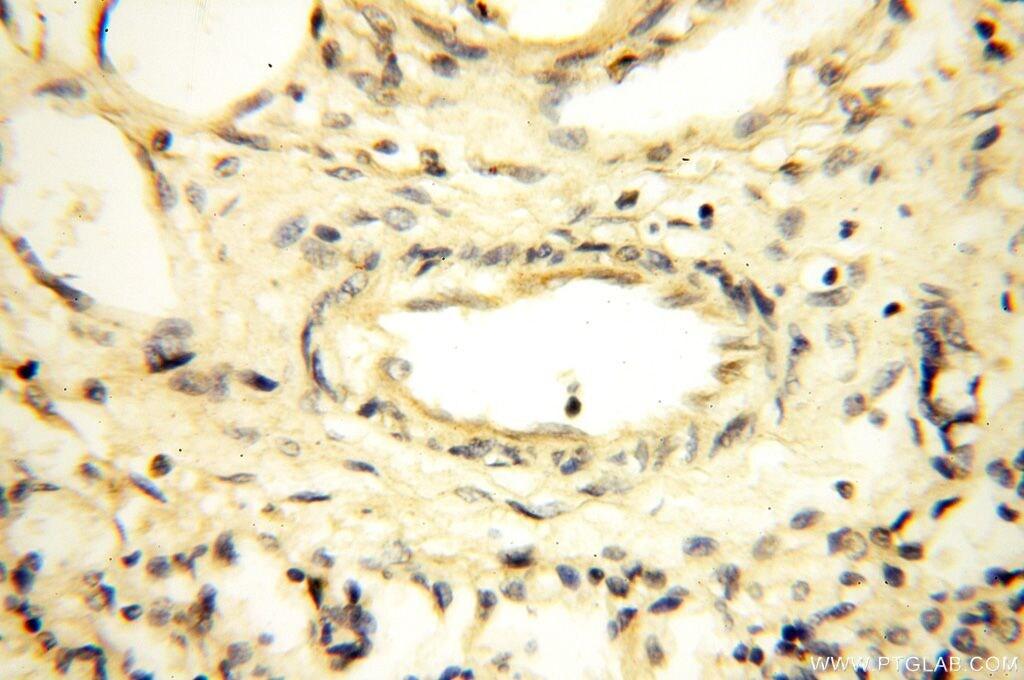 MRPS27 Antibody in Immunohistochemistry (Paraffin) (IHC (P))