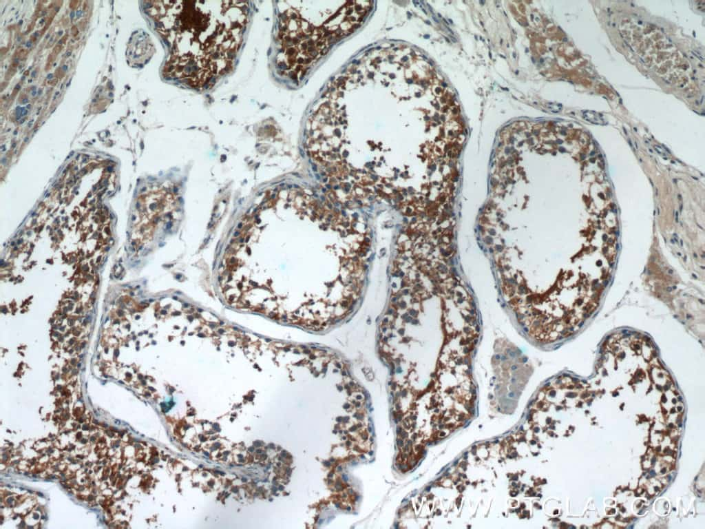 AGA Antibody in Immunohistochemistry (Paraffin) (IHC (P))
