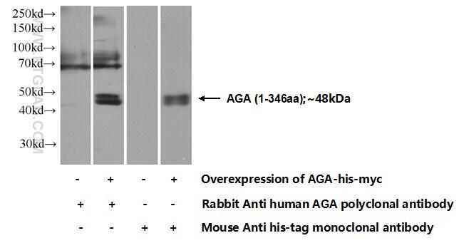 AGA Antibody in Western Blot (WB)