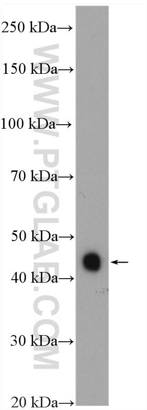 MEK4 Antibody in Western Blot (WB)