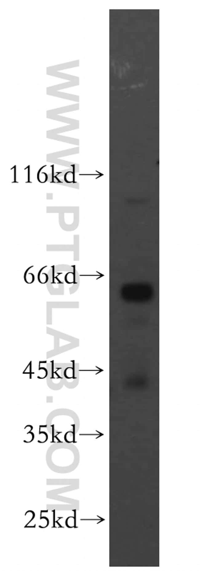 PIGZ Antibody in Western Blot (WB)