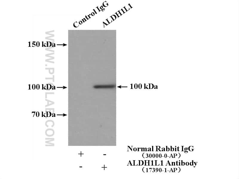 ALDH1L1 Antibody in Immunoprecipitation (IP)