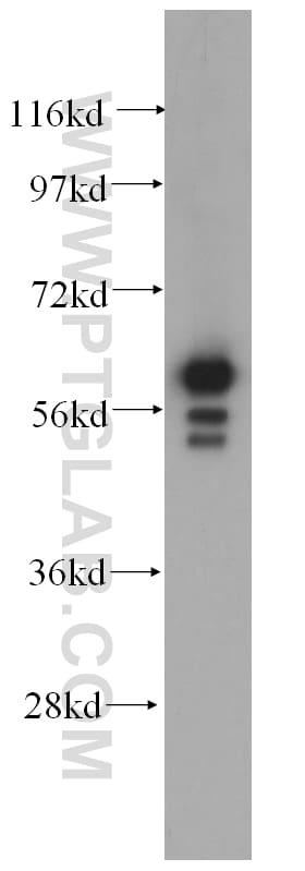 Cytokeratin 6B Antibody in Western Blot (WB)