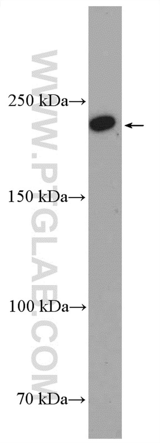 KIF26B Antibody in Western Blot (WB)