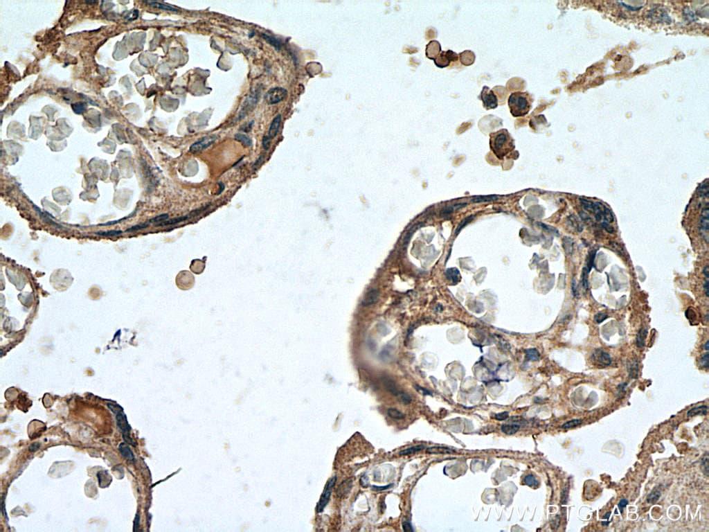 Leptin Antibody in Immunohistochemistry (Paraffin) (IHC (P))