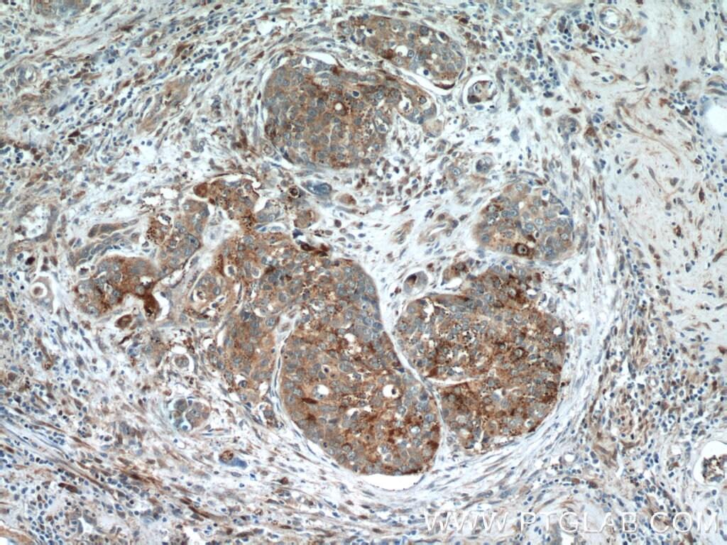 HDAC4 Antibody in Immunohistochemistry (Paraffin) (IHC (P))