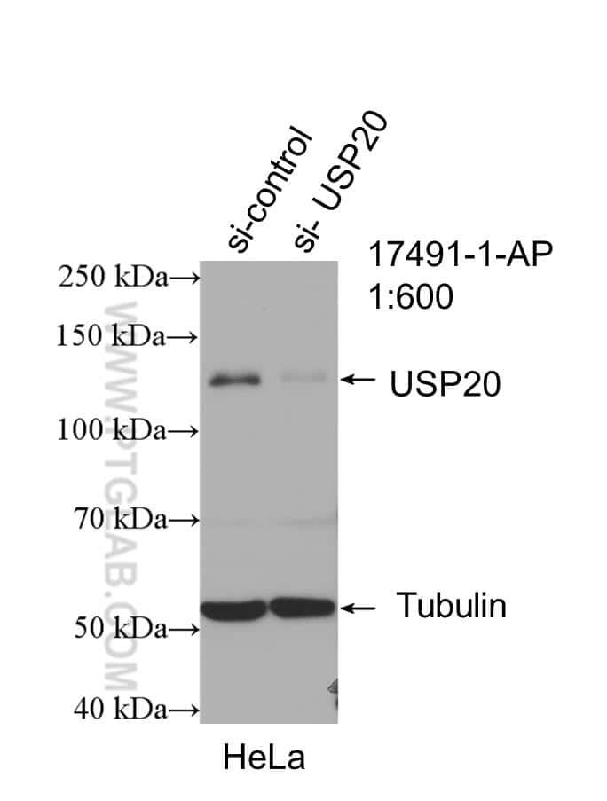 USP20 Antibody in Western Blot (WB)