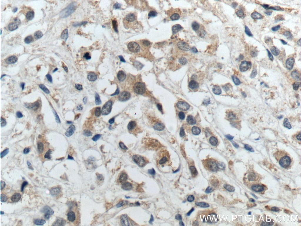 IRS1 Antibody in Immunohistochemistry (Paraffin) (IHC (P))