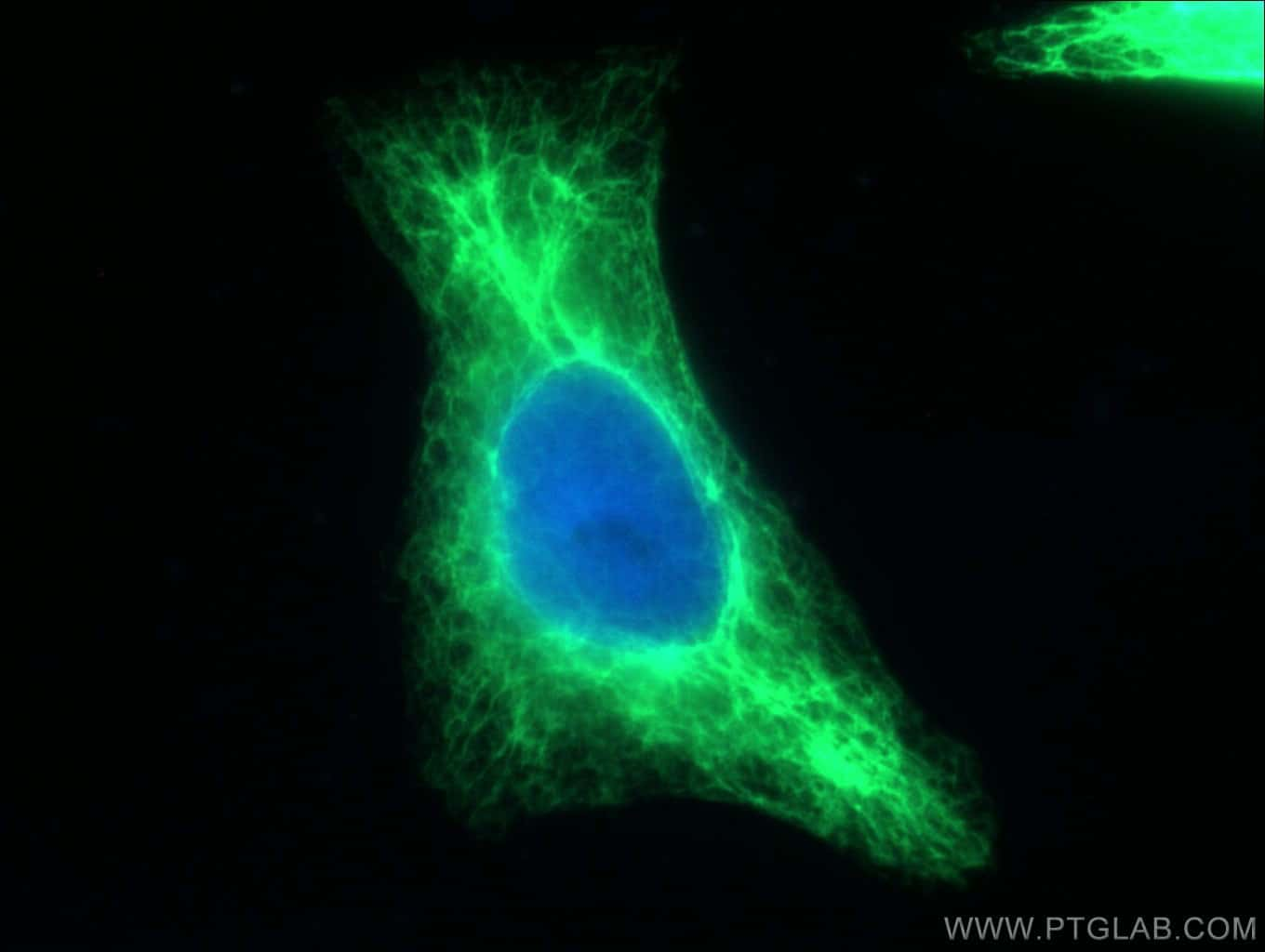 Cytokeratin 17 Antibody in Immunofluorescence (IF)