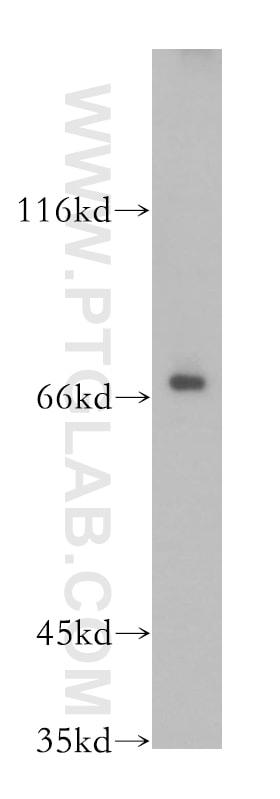 CTDSPL2 Antibody in Western Blot (WB)