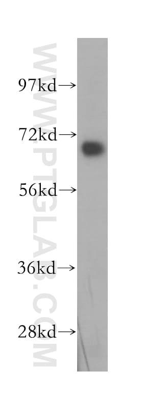 DNAI2 Antibody in Western Blot (WB)
