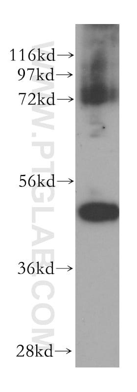 HDAC8 Antibody in Western Blot (WB)