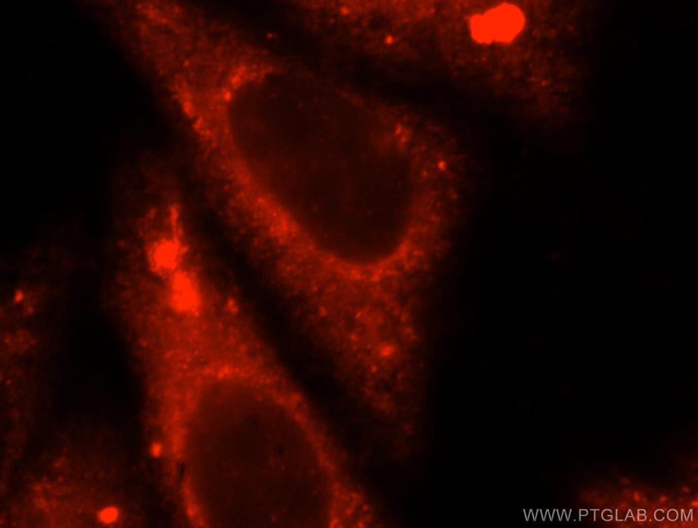 TRMT11 Antibody in Immunofluorescence (IF)