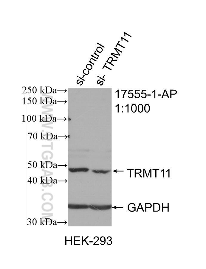 TRMT11 Antibody in Western Blot (WB)