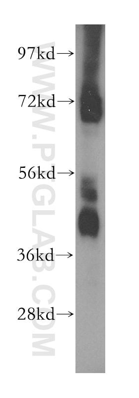 MAPK10 Antibody in Western Blot (WB)